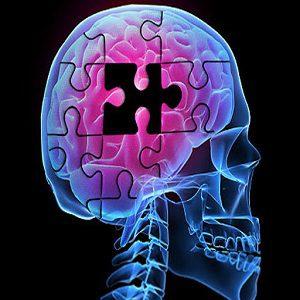 choroby Alzheimera